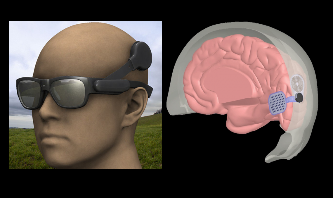 hogyan kezeljük a részleges látásvesztést melyik látás mértéke