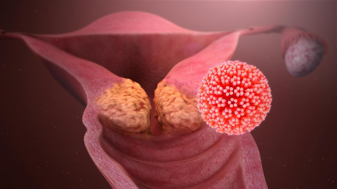 папилломавирус и рак шейки матки